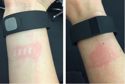 坑爹手环Fitbit Charge依然会导致皮肤过敏