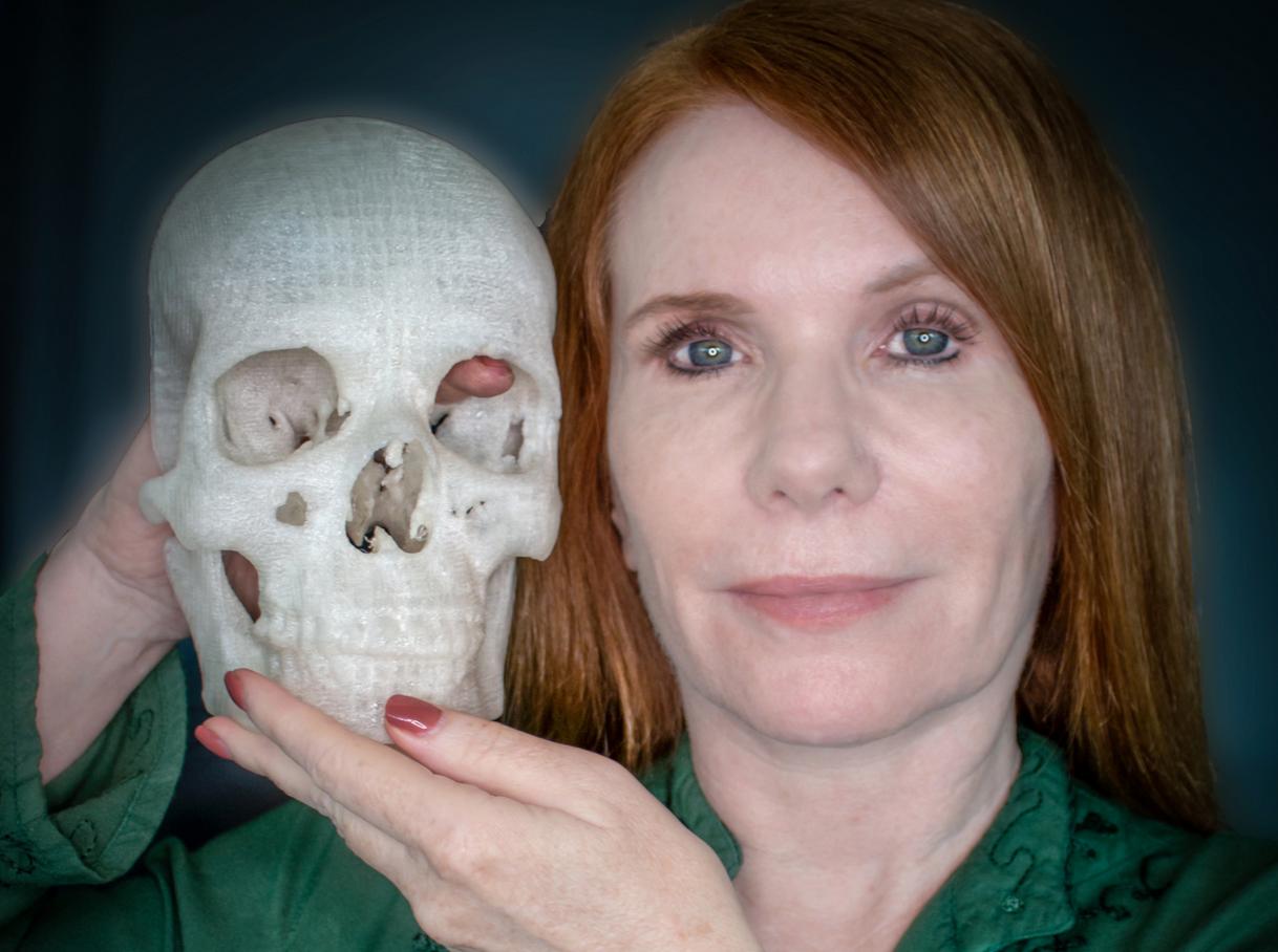 手术前可以先把器官用3D打印出来