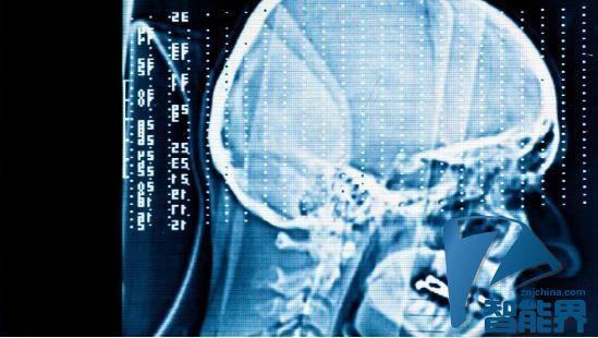 """未来能""""读心""""的智能设备将直接植入大脑"""