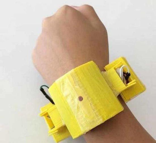 17岁少年为救母3D打印心脏监控警报装置